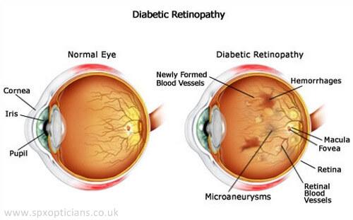 What is Diabetic Retinopathy?